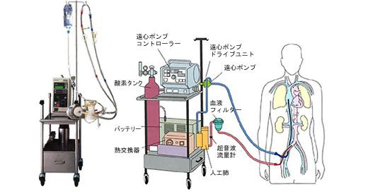 PCPSの装置、写真とイラスト(遠心ポンプコントローラー/酸素タンク/バッテリー/熱交換器/遠心ポンプドライブユニット/遠心ポンプ/血液フィルター/超音波流量計/人工肺)